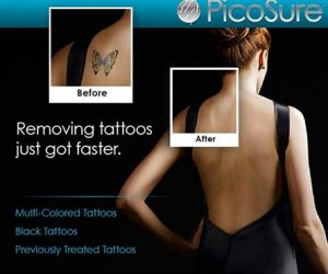 Tattoo Removal with PicoSure
