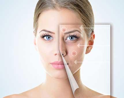 Skin Pigmentation Disorder