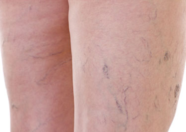 Thread Veins Removal