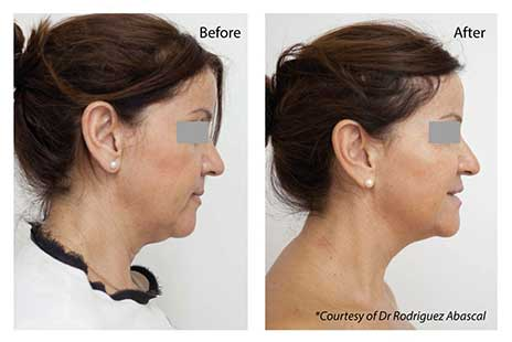 Profhilo Injectables Before and After