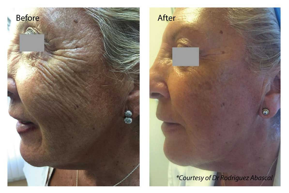 Eye Wrinkles Profhilo - Profhilo Injectables