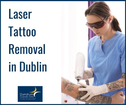 Laser Tattoo Removal Dublin